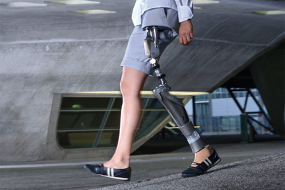 Hip joint prosthesis with iglide® bearings by Otto Bock HealthCare GmbH